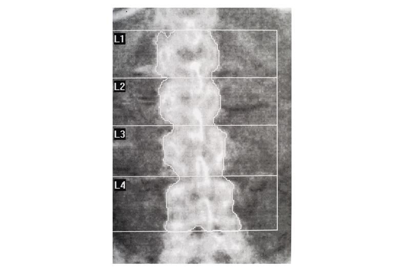 Infezione da HIV in odontostomatologia: screening osteo-metabolico pre-implantare