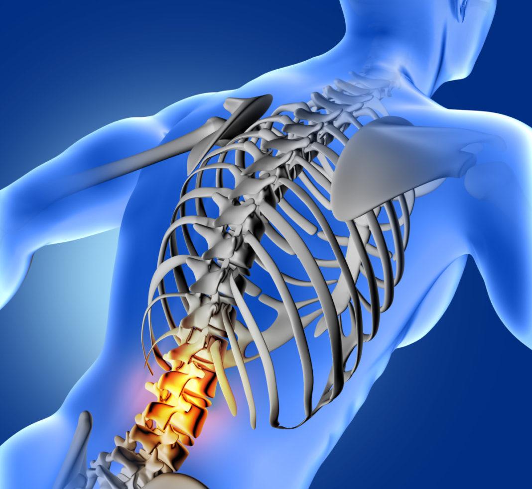Bone-health-vertebroplastica-percutanea-.jpg