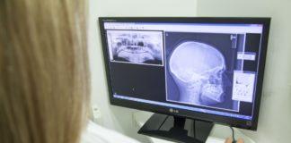 Pericoli della sospensione di terapie anti-riassorbitive