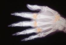 Chmp di Ema ha rilasciato parere positivo perUpadacitinib un inibitore selettivo e reversibile della JAK-1 (Janus kinase) somministrato per via orale una volta al giorno – per il trattamento dell'artrite reumatoide da moderatamente a severamente attiva