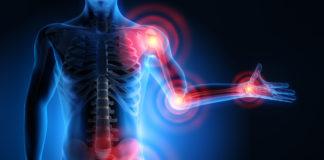 artrite reumatoide e diabete tipo 2