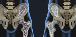 Risposta a denosumab nell'osteoporosi, effetto del precedente trattamento con bifosfonati e di insufficienza renale