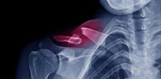 salute delle ossa e chirurgia ortopedica