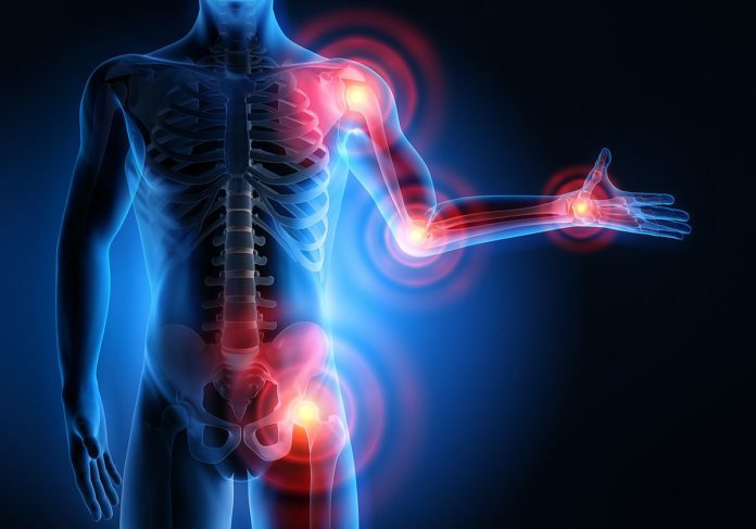 microbiota intestinale e osteoartrite