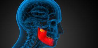 Osteonecrosi dei mascellari: zelodronato vs denosumab