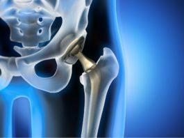 protesi d'anca e iposurrenalismo.jpg