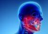 osteonecrosi delle ossa mascellari
