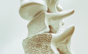 Zoledronato e discontinuazione del denosumab