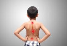 miR-151a-3p: Possibile Biomarcatore nella Scoliosi Idiopatica Giovanile