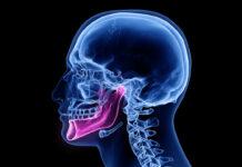 osteonecrosi mascellare